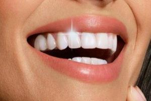 Fehér fogak: Ezzel a 7 lépéssel otthon is elérheted